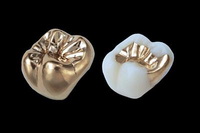 ゴールド|武蔵新城の藤木歯科クリニック