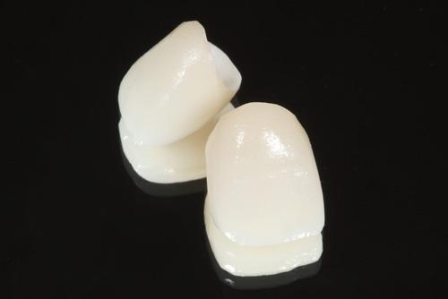 オールセラミック|武蔵新城の藤木歯科クリニック