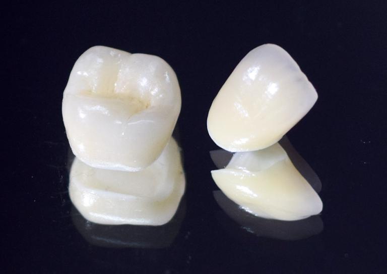 ジルコニア|武蔵新城の藤木歯科クリニック