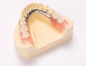 保険の入れ歯|武蔵新城の藤木歯科クリニック