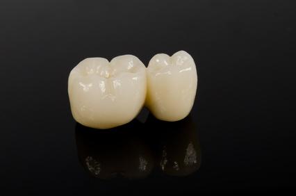 e-max|武蔵新城の藤木歯科クリニック