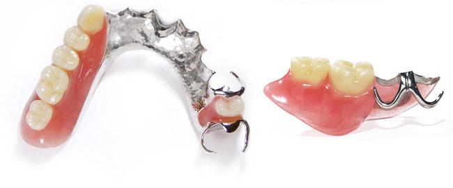保険の入れ歯 藤木歯科クリニック