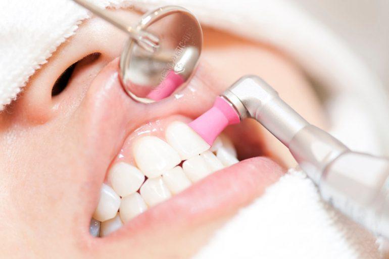 PMTC|武蔵新城の藤木歯科クリニック