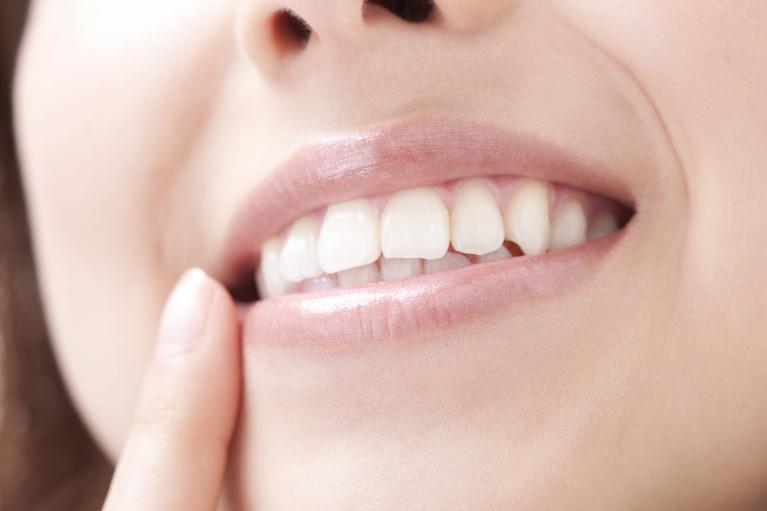 クリーニング|武蔵新城の藤木歯科クリニック